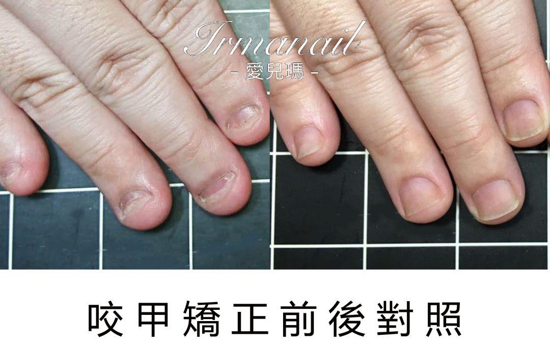 高雄咬指甲矯正推薦,光療指甲處理成功案例|IRMA愛兒瑪
