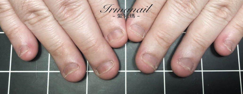 咬指甲治療
